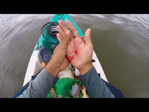 Got Seriously Injured By Catfish - GRAPHIC (Catfish Fishing Fail)