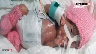 (VTC14)_Bé sơ sinh nhỏ nhất thế giới nặng 0,2kg