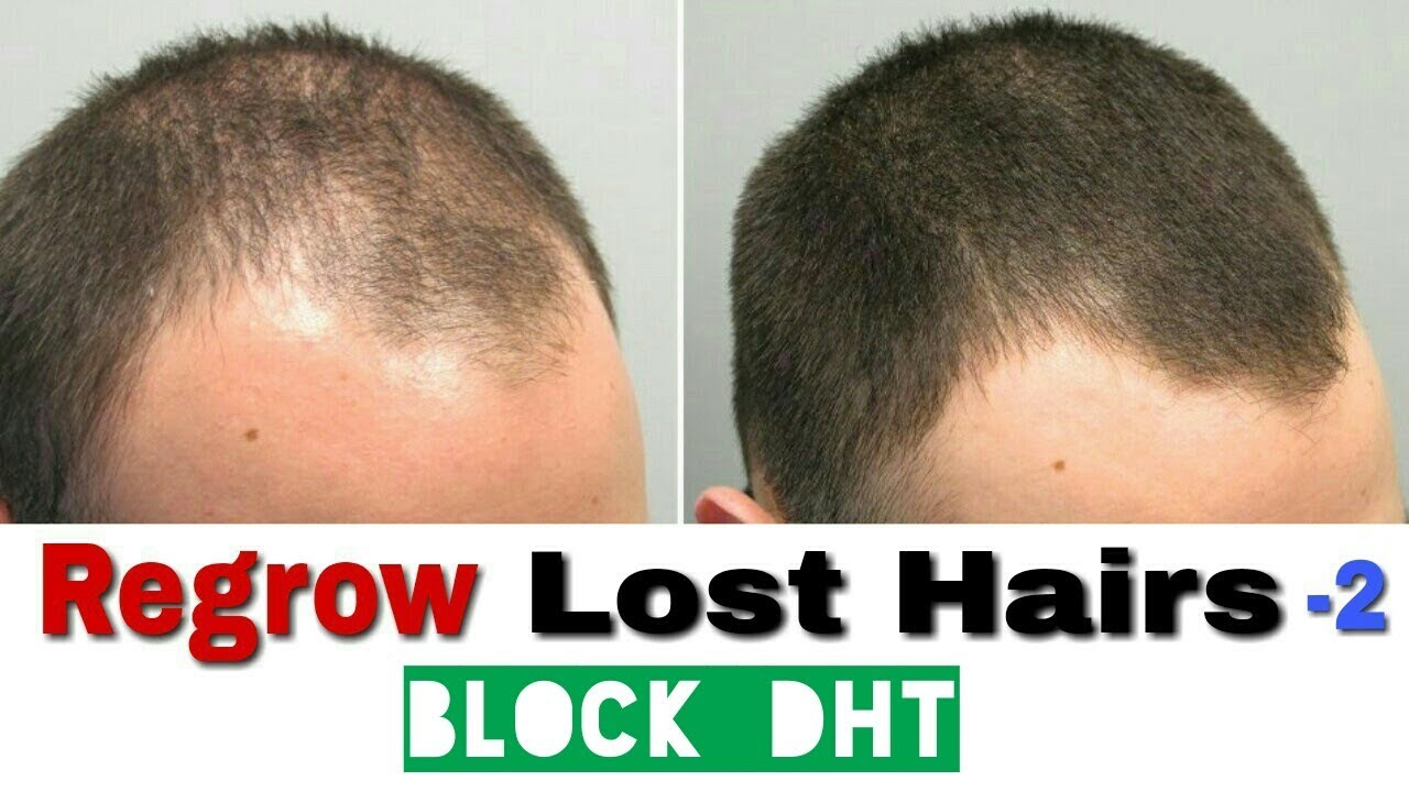 Regrow lost hairs| Block DHT to stop hair fall| Make hairs thicker and  stronger