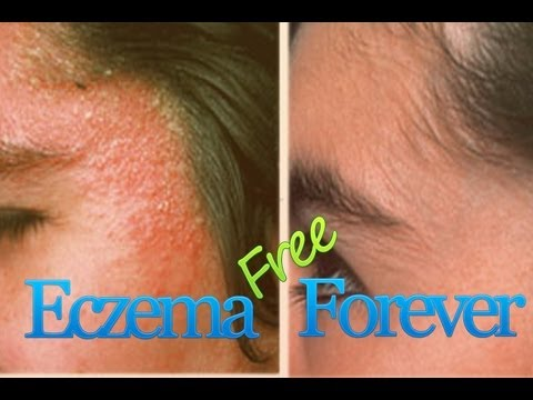 Very facial eczema products this situation