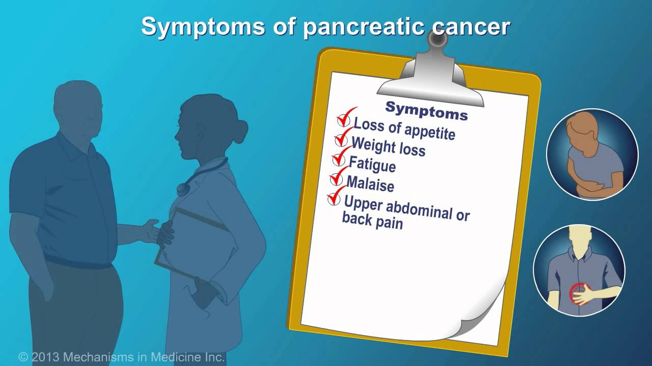 pancreatic cancer symptoms and treatment