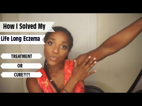 Treatment or Cure Eczema??? | Before Photos | Vegan | NaptuRo90