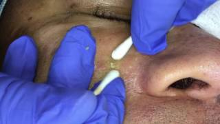 Managing Ethnic skin (Extractions part 6) thumbnail