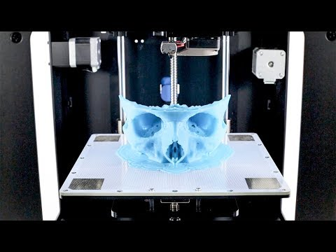 3D Printing in Medicine: Facial Reconstruction Surgery