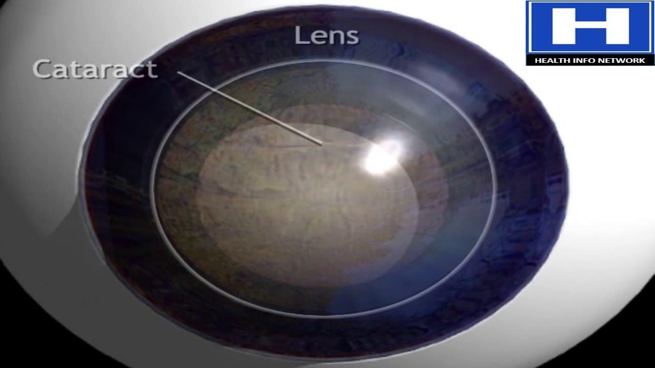 What Is Cataract How Cataract Develops Cataract Treatment