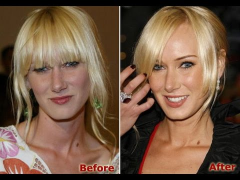 Kimberly Stewart Plastic Surgery Before And After Photos