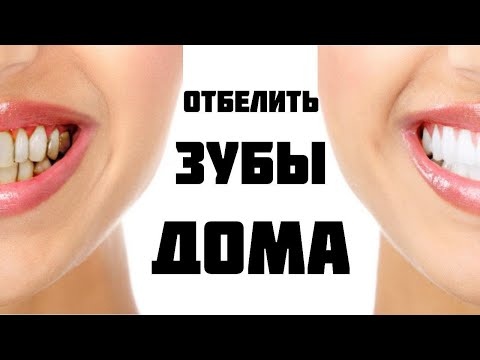Вопрос: Как удалить желтые пятна между зубами?