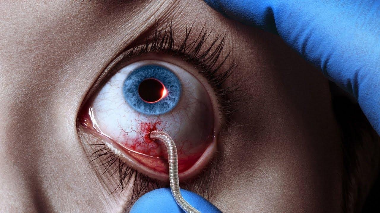 Download The Strain (TV Series - 2014) Season 1 Trailer