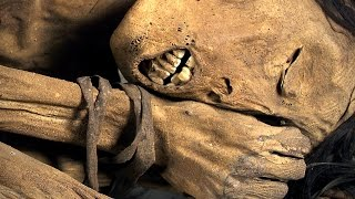 Mummies: scanning ancient human remains