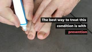 Tinea pedis (athlete's foot) Epidemiology: Most common tinea infection Clinical features by type: In.