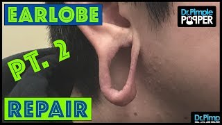 Earlobe Repair after Significant Stretching: Pt.2