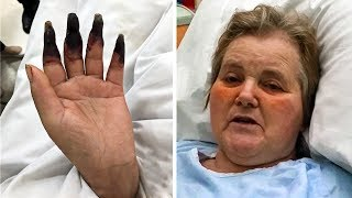 Через 2 дня после уборки, женщина начала замечать, что ее пальцы чернеют
