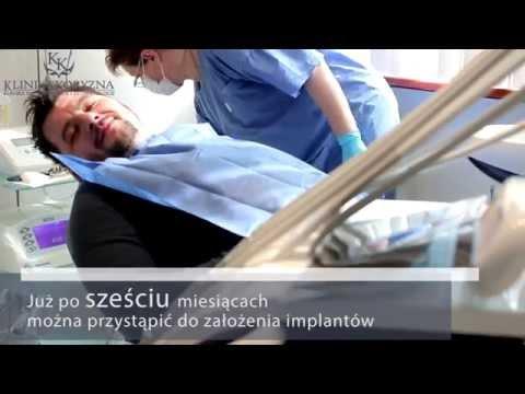 Klinika Koryzna W Szczecinie - Przeszczep Kości