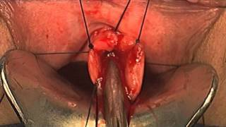 Urethral Prolapse Repair, Kurt Strom MD, Joshua Holyoak MD, Scott Matz MD, Female Urology