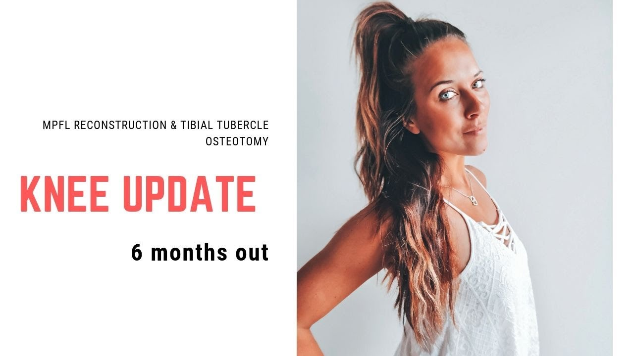 Download UPDATE! 6 months out of MPFL & Tibial Tubercle Osteotomy