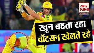 Shane Watson खेलते रहे Bleeding होती रही | Shane Watson Bleeding Knee Injury in IPL 2019 Final Match