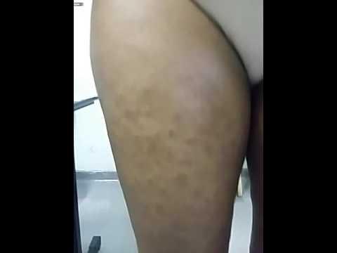 Pityrisis rosea