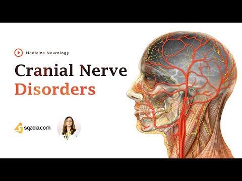 Patient Success Story | Treatment of Trigeminal Neuralgia | Dr. Prithvi Giri.
