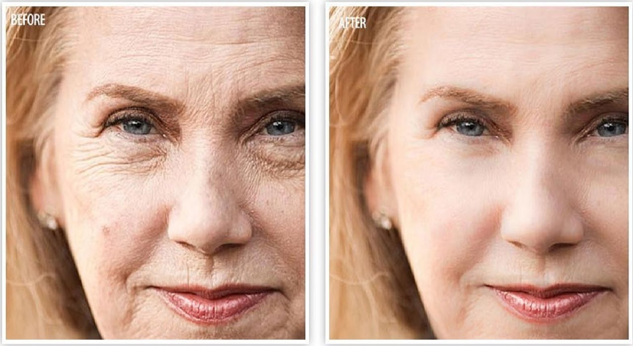 Image result for anti wrinkle cream before and after
