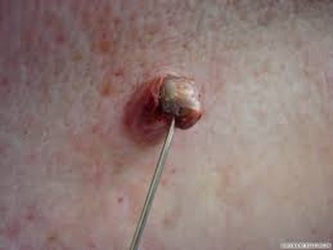 Anal area White pimples HD on