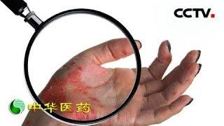 《中华医药》 20190518 与银屑病和平共处的日子  CCTV中文国际