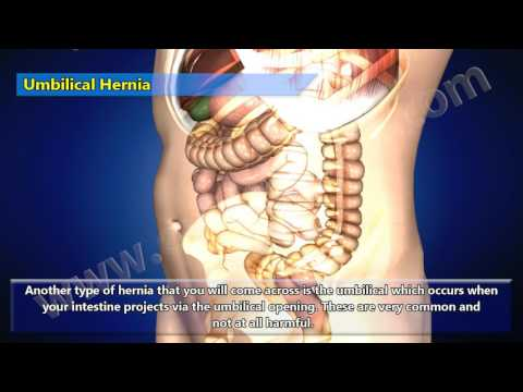 3D Video of Different Types of Hernia