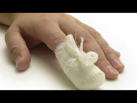 Вопрос: Как вылечить прищемленный палец?