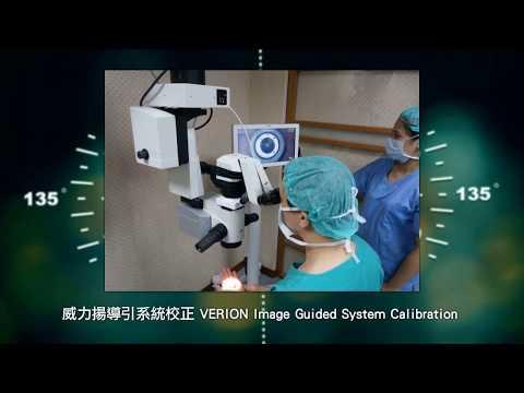 钻石刀近视手术後的微创白内障屈光定位手术