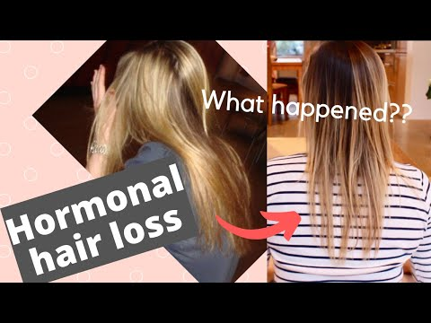 hair-loss-after-birth-control-|-day-1-hair-growth-series