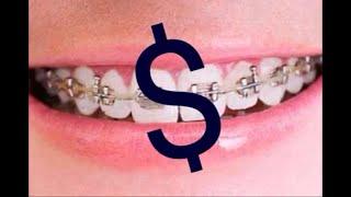 Cuanto cuesta ponerse brackets? (Ortodoncia) - Mi experiencia!