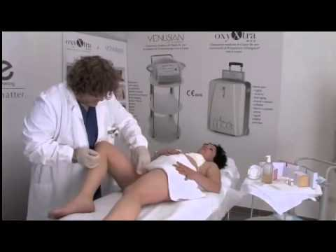 Gas Contouring, a treatment to reduce fat tissues and reshape the body
