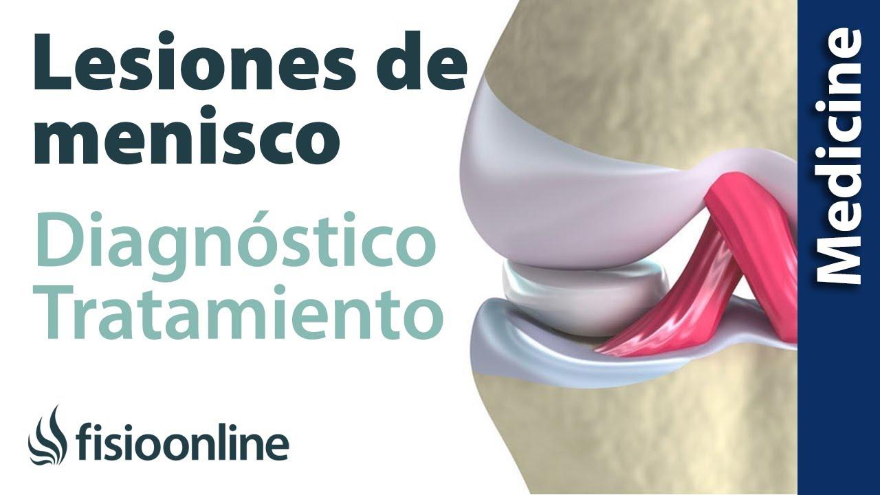 Rotura De Menisco Diagnóstico Y Tratamiento De Fisioterapia Médico Y Quirúrgico Youtube