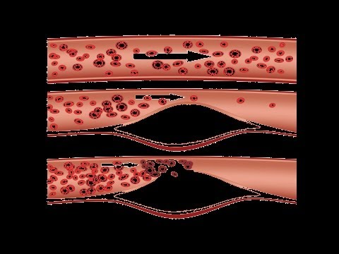 What Is Peripheral Vascular Disease? | Heart Disease