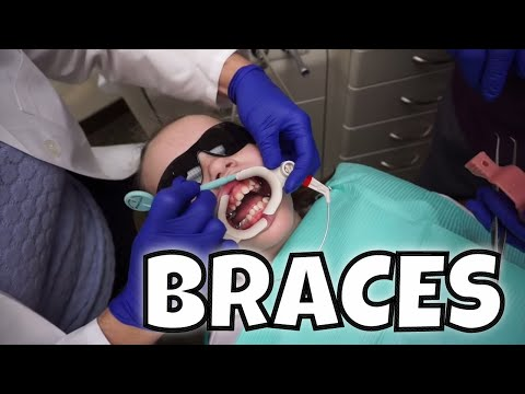 GETTING BRACES ON FOR THE FIRST TIME!