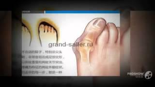 удаление шишек на пальцах ног      - Вальгус про недорого купить.(, 2014-09-16T04:33:53.000Z)