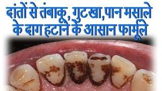दांतों से तंबाकू, गुटखा,पान मसाले के दाग हटाने के आसान फार्मूले || Ayurved Samadhan ||