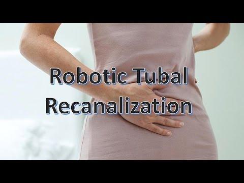 Robotic Tubal Recanalization, Tubal Sterilization Reversal Or Tubal Ligation Reversal