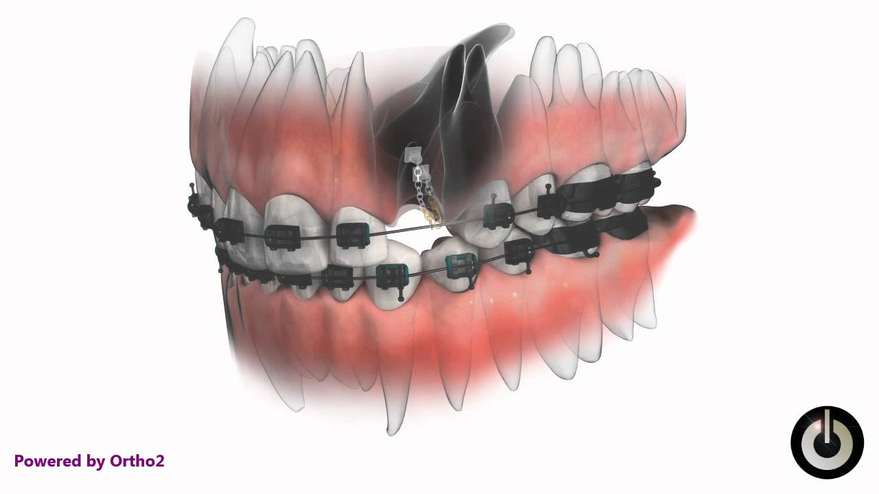 Treatment of an impacted canine tooth with retained baby tooth ...