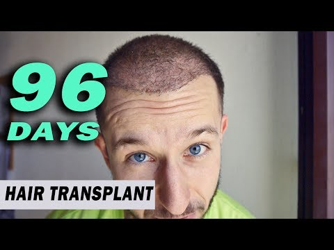 FUE Hair Transplant 96 Days (post op) Istanbul,Turkey GROWTH STAGE