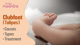 Club Foot (Talipes) in Babies - Causes, Signs & Treatment
