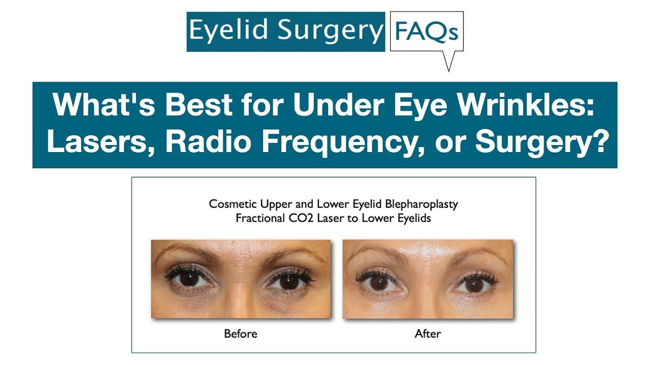 radiofrequency under eyes