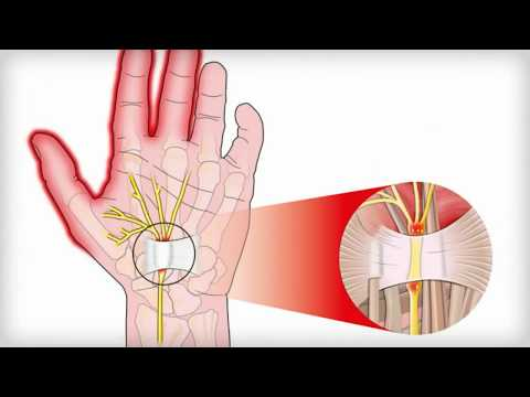 Up to 10 percent of the population knows the aggravation; the achy wrist, the weakened grip, the num.