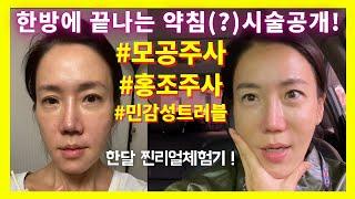 (Eng)Vlog 동안프로젝트.티안나게 연예인 꿀피부 …