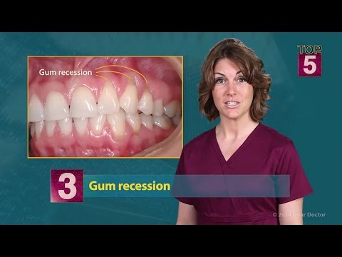 Top 5 Symptoms of Gum Disease