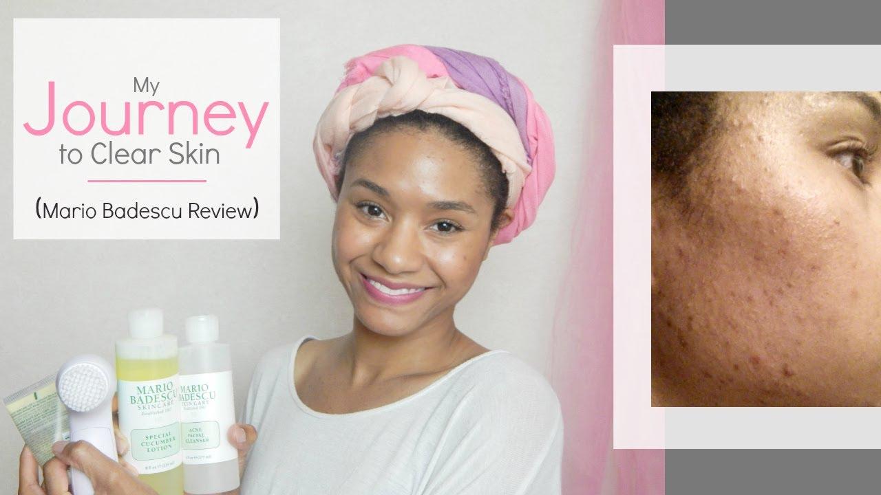 My Journey To Clear Skin Mario Badescu Skin Care Review Gloria Warren