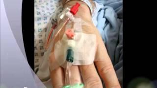 Idiopathic Intracranial Hypertension (IIH) Awareness Video