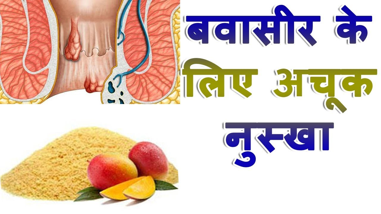 Ayurvedic Tips For Bawaseer Home Reme s For Piles Treatment At