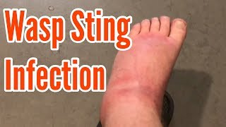 Wasp sting infection