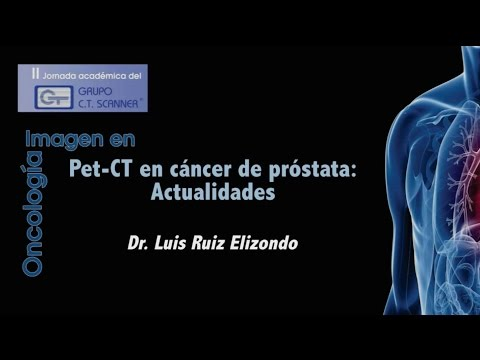 PET-CT en cáncer de próstata. Actualidades