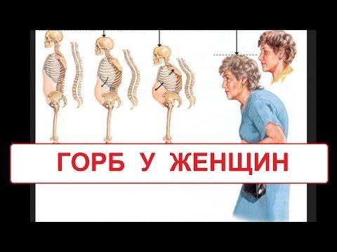 Остеопороз. Причины остеопороза